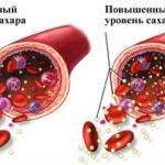Главнейший враг диабета! Теперь уровень сахара всегда будет 5,5 ммоль/л без таблеток и инъекций.