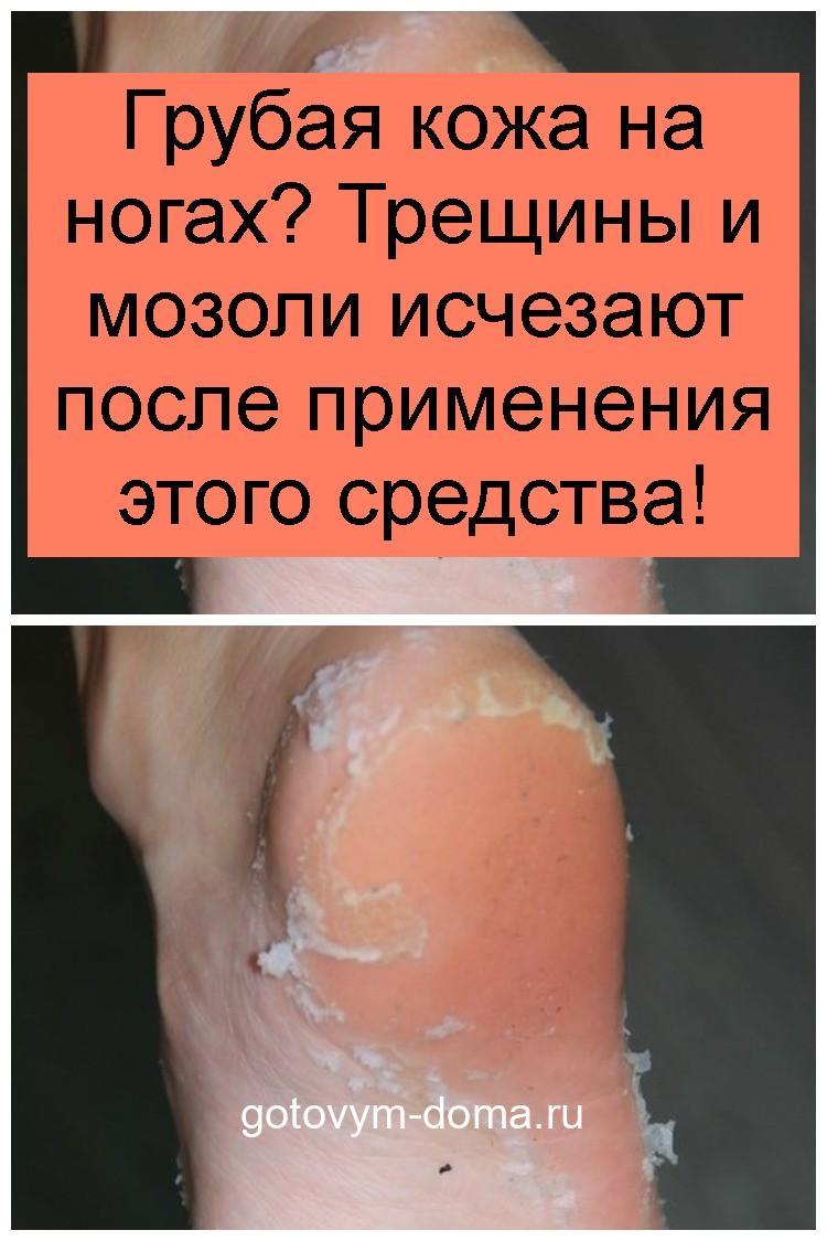 Грубая кожа на ногах? Трещины и мозоли исчезают после применения этого средства 4