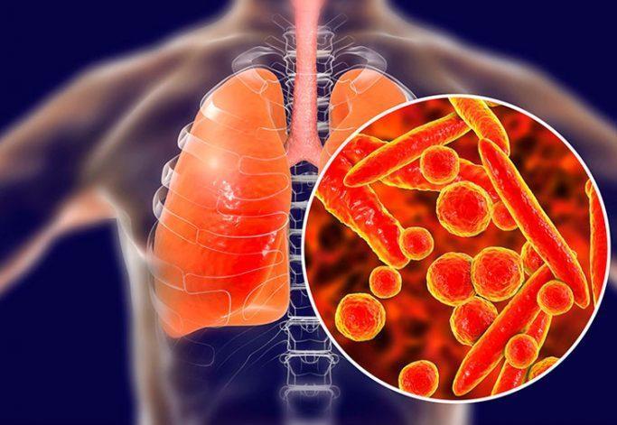 10 симптомов пневмонии, которые не стоит игнорировать 1